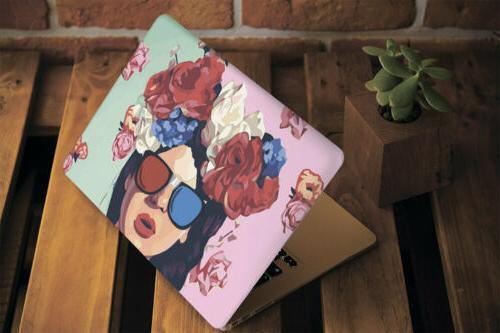 Pin-Up Macbook Pro Air 13 Cover